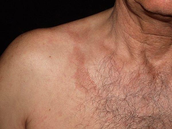 berloque_dermatitis