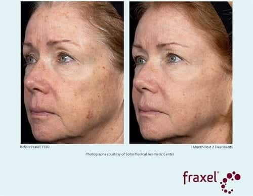 Dual Fraxel Procedures in New York City