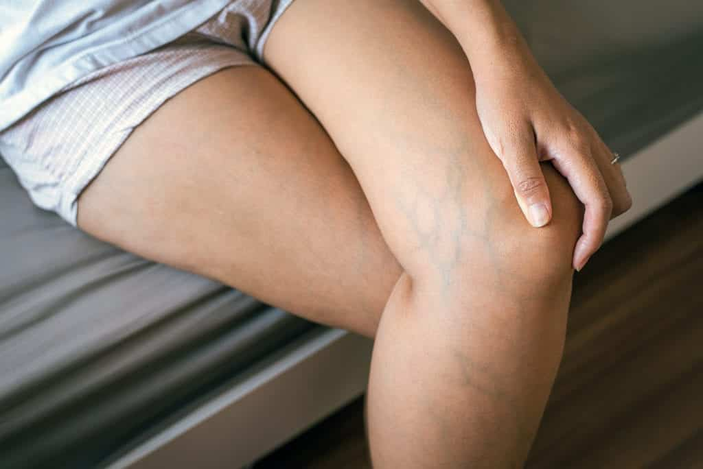 Varicose veins on the womans leg